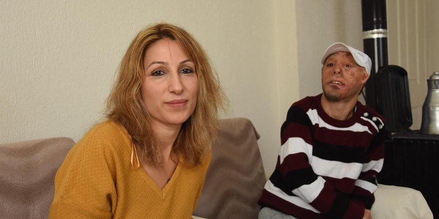 MEHMET ALİ'Yİ AMELİYAT EDECEK DOKTORLAR ARANIYOR